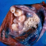 Teratoma With Teeth