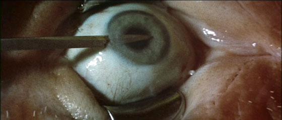 Anguish - Needle In Eyeball