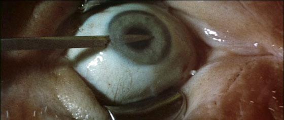 Anguish - Needle In Eyeball
