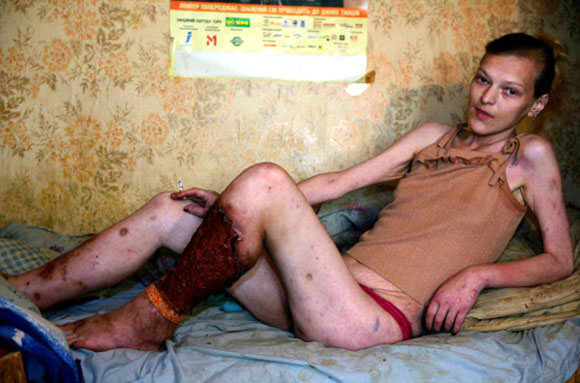 Russian girl addicted to Krokodil.