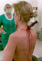 Real Horror? Stab Victim Doesn't Know About Blade In Her Neck